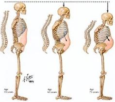 Free bone density and osteoporosis checks in Plovdiv